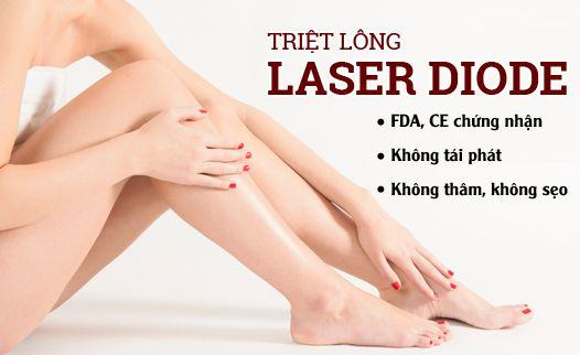 Giảm giá 50% triệt lông công nghệ diode laser