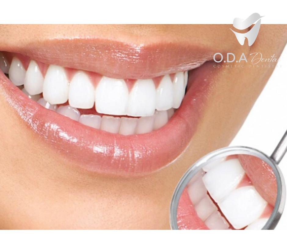 Cách bảo vệ men răng khỏi bị xói mòn tại nhà | Nha khoa thẩm mỹ ODA