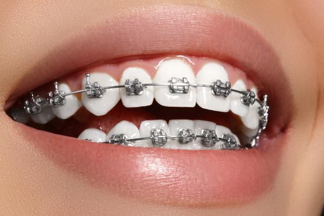 Niềng Răng Ở Đâu Tốt Nhất TpHCM